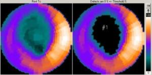 radio-nuclide-6